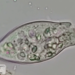 Opercularia (Ciliate) - Photo (c) Shane Smith, some rights reserved (CC BY-NC)